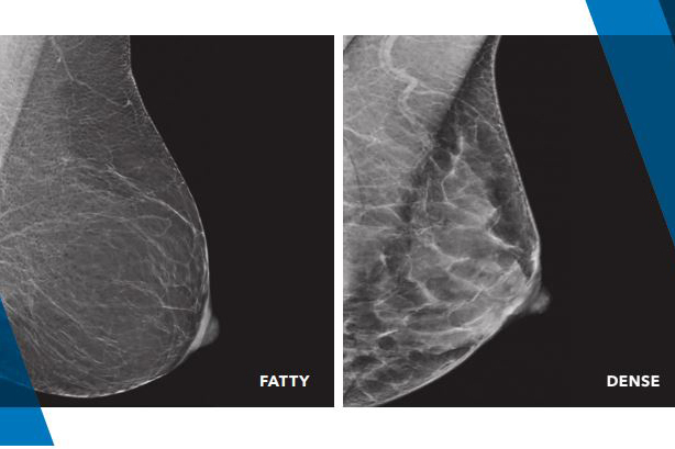 Breast density and what it means for you, according to the new medical director of Shaw Cancer Center's Breast Care Program